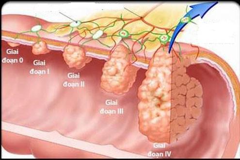 Ung thư đại trực tràng – căn bệnh thường gặp ở nam giới