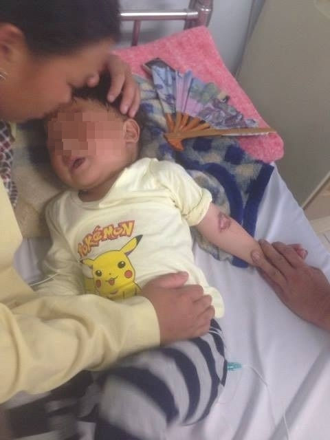 Ăn nhầm bột hóa chất, bé 3 tuổi bị bỏng miệng và thực quản dạ dày