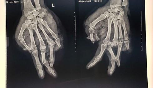 Nổ bình gas mini khi đang ăn lẩu, nam thanh niên bị dập nát bàn tay