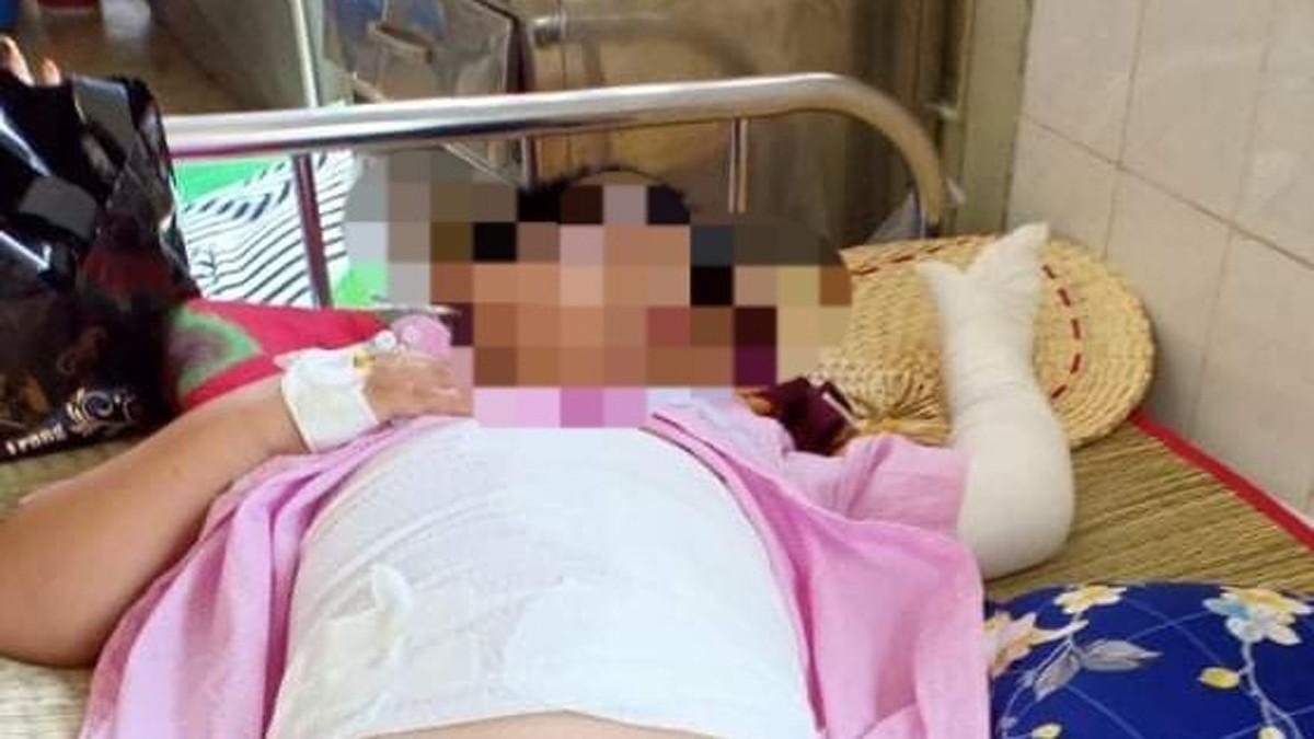 Khởi tố vụ án, truy tìm đối tượng ném bom xăng khiến 2 cháu bé bị bỏng nặng
