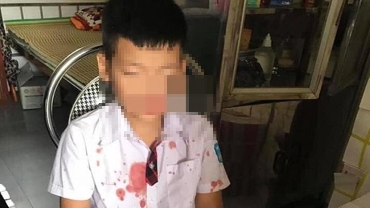 Học sinh lớp 1 bị bố của bạn hành hung chấn thương vùng mặt