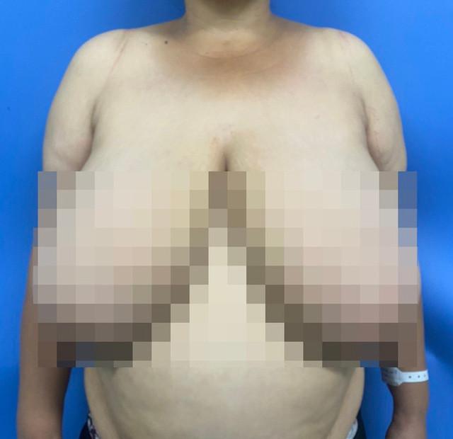 """Người phụ nữ khốn khổ vì """"ngực khủng"""" gấp 10 lần bình thường"""