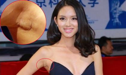HH thế giới Trương Tử Lâm lộ sẹo nâng ngực khó chối cãi