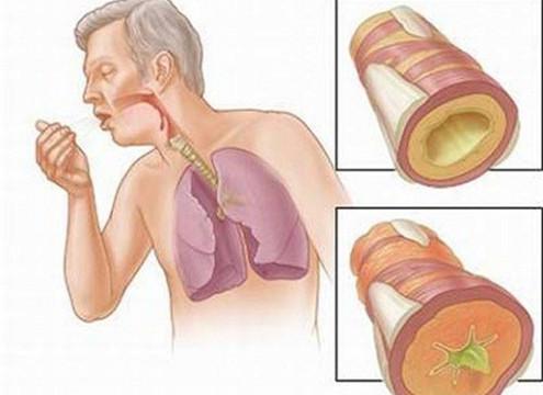 Có thể chuẩn đoán ung thư phổi sớm qua xét nghiệm máu