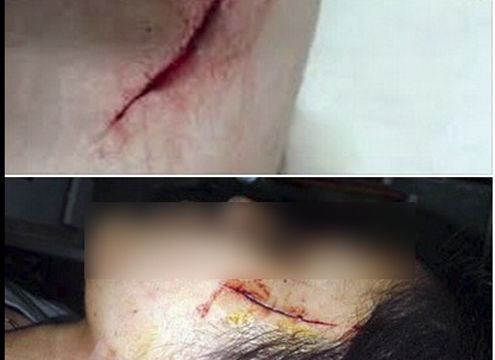 """Điều tra đối tượng tung tin đồn """"nữ sinh bị cướp rạch mặt"""""""