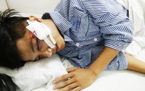 Tin tức pháp luật ngày 30/8: Cảnh sát cơ động Hải Phòng bị ném vỡ xương gò má