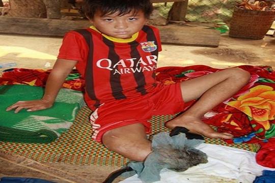 """Cậu bé dân tộc Mông """"xin cắt chân"""" đã được phẫu thuật thành công"""