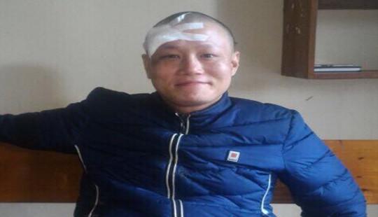 Hà Tĩnh: Đại úy công an bị chém khi làm nhiệm vụ
