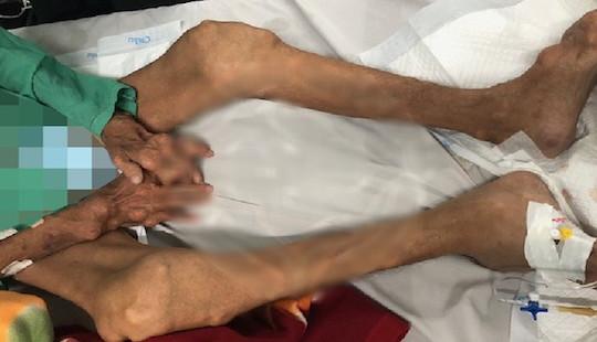 10 năm tự trị bệnh gout, người đàn ông bị biến dạng tay chân