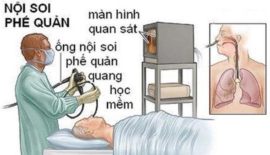 Kết luận nguyên nhân bệnh nhân tử vong khi nội soi phế quản ở BV Bạch Mai
