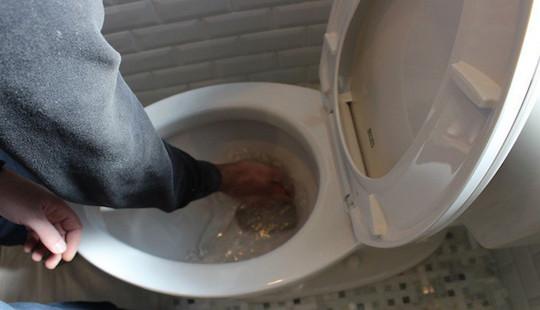 Bỏng nặng vì nước rửa bồn cầu văng trúng người