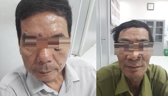Đi đốt nốt ruồi, người đàn ông tá hoả phát hiện mắc ung thư da