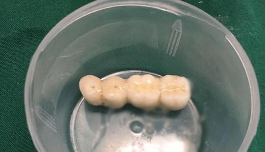 Đi làm răng, cụ ông 90 tuổi bị 4 răng giả rơi vào phế quản