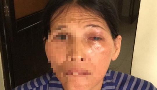Suýt hỏng giác mạc vì đắp lá chữa đau mắt