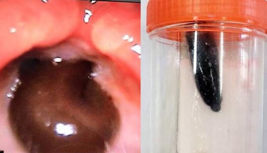 Con đỉa dài 5cm sống trong cổ họng bé gái suốt 2 tháng