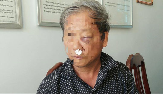 Làm rõ vụ phóng viên VTV bị hành hung khi đi ăn sáng