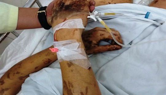 Vụ đôi nam nữ Việt kiều bị tạt a xít: Anh trai nạn nhân về Canada kiếm tiền chữa trị cho em
