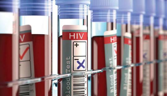 Người thứ 3 trên thế giới được chữa khỏi HIV