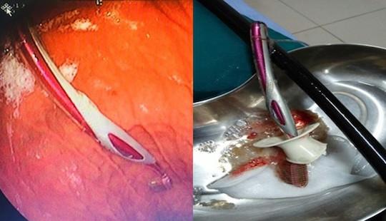 Nuốt nguyên bàn chải đánh răng khi tự ý sơ cứu hóc xương cá