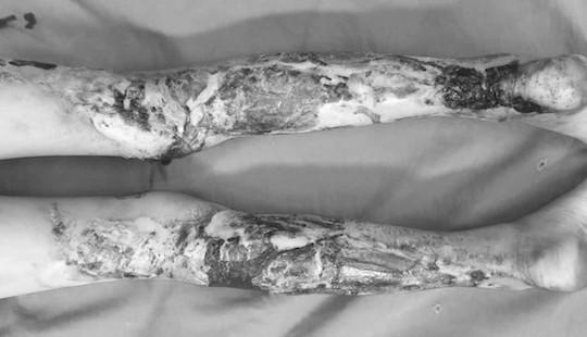 Đắp thuốc nam chữa bỏng, bé 9 tuổi bị hoại tử đôi chân