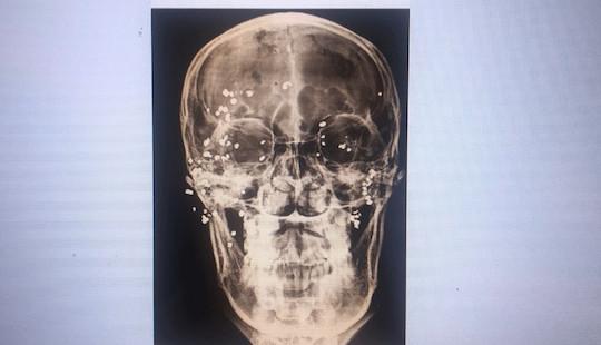 Nam thanh niên suýt mù do 50 viên đạn hoa cải găm trên mặt