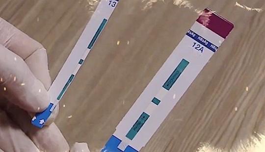 Lập đoàn thanh tra vụ cắt đôi test xét nghiệm HIV, viêm gan B tại Bệnh viện Xanh Pôn