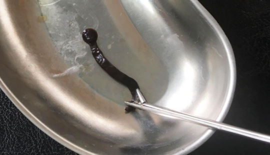 Gắp đỉa nước dài 4cm trong mũi bệnh nhân nhi