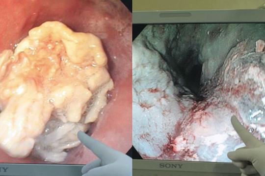 Nhập viện vì hóc thịt ngan, người đàn ông phát hiện ung thư thực quản