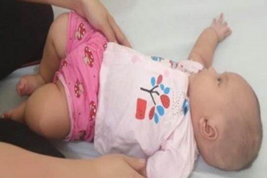 Phẫu thuật thành công cho bé gái bị thoát vị não
