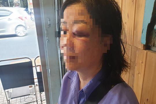 Điều tra vụ nữ tiếp viên xe buýt bị đánh sưng mắt vì nhắc khách mở nhỏ nhạc
