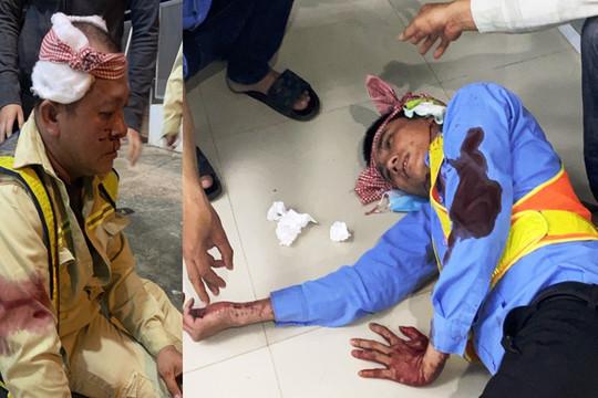 Nhân viên trạm thu phí Ninh Xuân bị đánh trọng thương