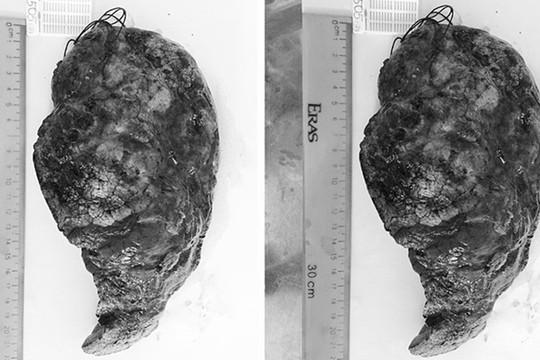 Phát hiện 2 loại ung thư trên cùng một thùy phổi