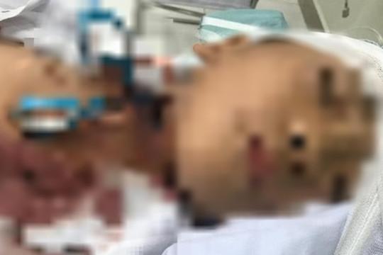 Bé trai 7 tuổi nhập viện với chiếc kéo đâm xuyên vào cổ