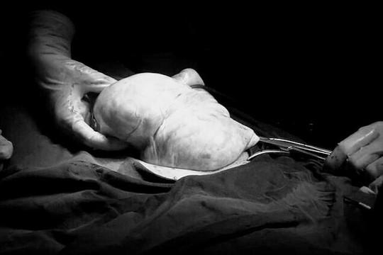 Bệnh nhân 63 tuổi mang khối u buồng trứng nặng 9kg