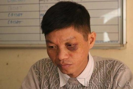 Bắc Kạn: Khởi tố người đàn ông tấn công CSGT khi bị kiểm tra vi phạm