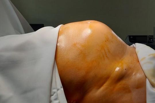 """64 tuổi mới đi khám lần đầu, người phụ nữ phát hiện khối u """"khủng"""""""