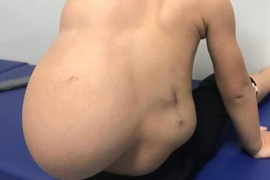 Bé 2 tuổi mang khối u nặng 4kg trên lưng