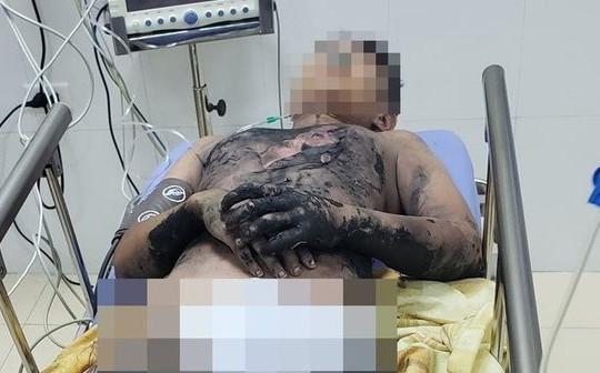 Làm thí nghiệm bằng cồn tại nhà, nam sinh 14 tuổi bị bỏng nặng