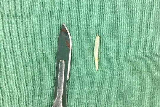 Cứu sống nữ bệnh nhân suýt tử vong do hóc xương cá