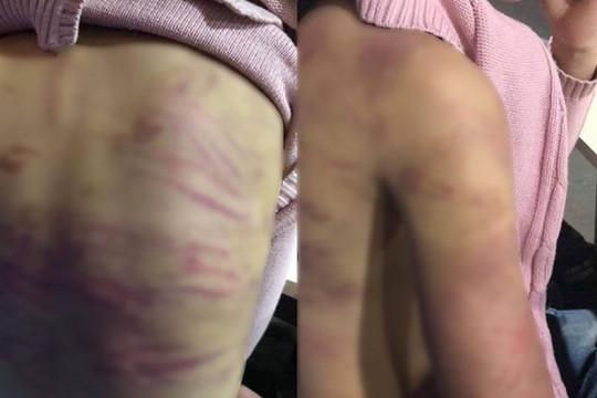 """Điều tra nghi án bé gái 12 tuổi bị mẹ đẻ và """"cha dượng"""" bạo hành"""