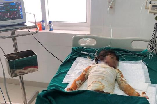 Bé gái 7 tuổi bị bỏng nặng sau khi ngọn lửa bén vào quần áo