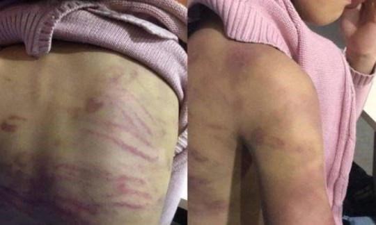 Khởi tố mẹ và người tình bạo hành, xâm hại bé gái 12 tuổi