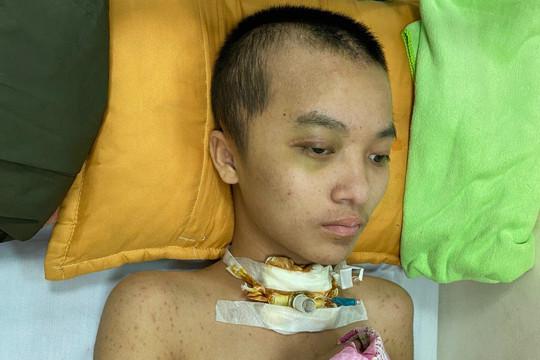 Xót xa hoàn cảnh bé trai bị chấn thương sọ não do tai nạn giao thông