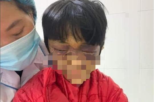 Làm rõ vụ bé gái 6 tuổi bị mẹ đẻ bạo hành nghiêm trọng