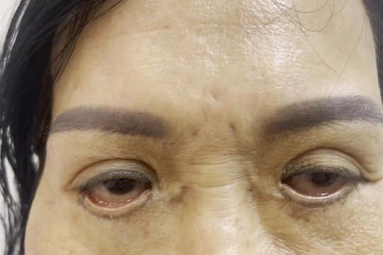 """Mắt đỏ hoe, không nhắm được sau khi cắt mí """"chui"""""""