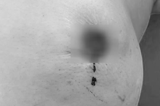 Ngực lở loét, mất núm vú do đắp thuốc nam chữa ung thư