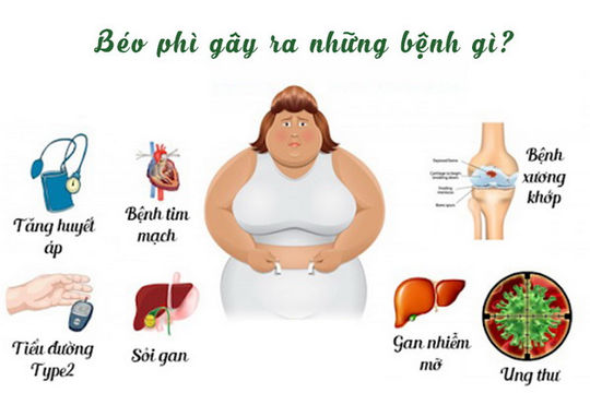 Những bệnh người béo phì dễ mắc