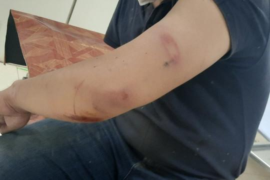 Hà Tĩnh: Một nhà báo bị hành hung khi đi tác nghiệp