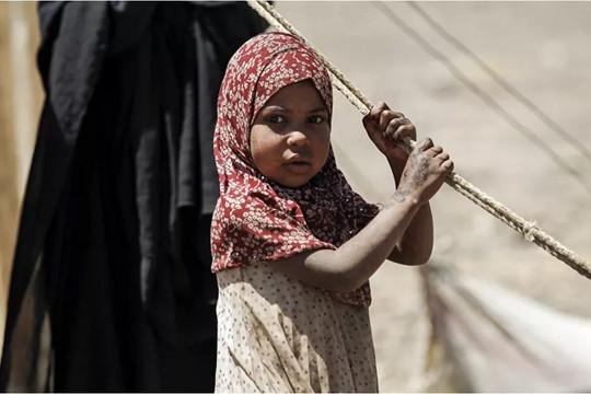 UNICEF: Cứ 10 phút lại có một trẻ em chết ở Yemen