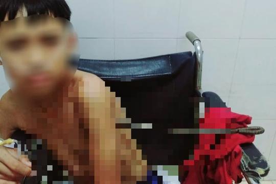 Bé trai bị thanh sắt đâm thấu ngực trong lúc chơi đùa